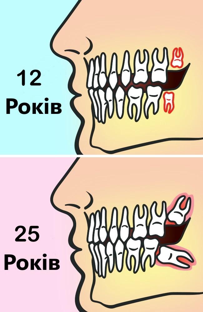 Чи потрібно насправді видаляти зуби мудрості?